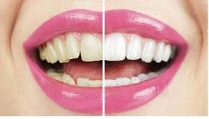 Il pericolo dello sbiancamento dei denti.